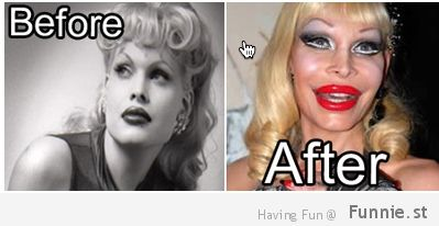 10 Plastic Surgery Fails Before After And Final Form