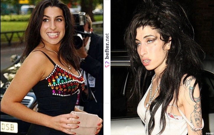 27 Celebs Before & After Drugs