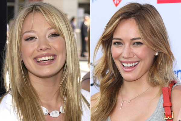 shocking 90s stars before after 9 photos