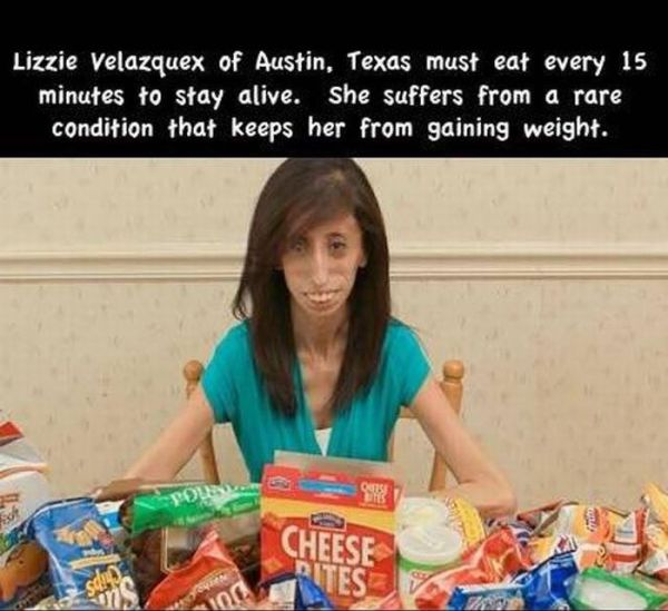 Rare and Bizarre Human and Animal Conditions (11 Photos)