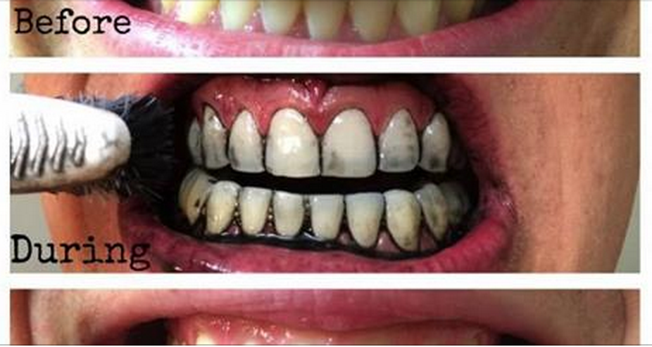 10 Tips To Whiten Your Teeth Naturally Home Remedies